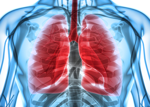 Pulmonary Fibrosis: How Doctors Treat You When Cause Is Unknown