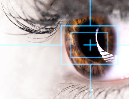 Turned Down for LASIK? Consider SMILE for Nearsightedness