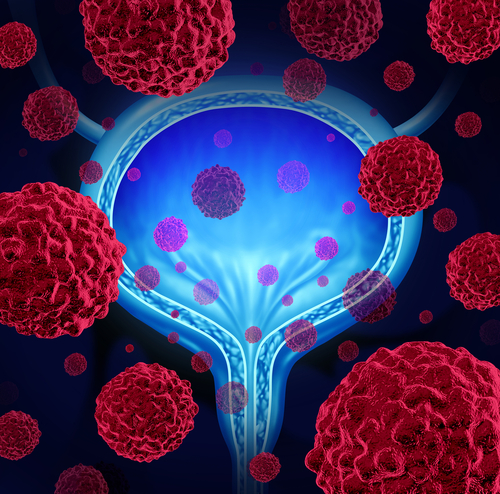 Harnessing Your Immune System to Treat Advanced Bladder Cancer
